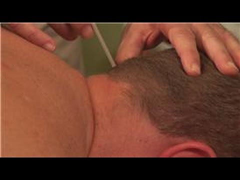 Acupuncture & Health : Acupuncture & Migraines