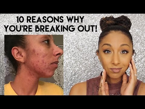 10-reasons-why-you're-breaking-out!-acne-tips!-|-biancareneetoday