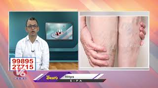 Reasons And Treatment For Varicose Veins | Avis Hospitals | Good Health | V6 News