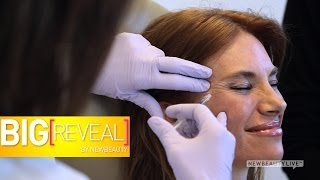 3 Women Try Botox For The First Time | Big Reveal Ep. 3