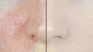 How to Make Pores Disappear!   STEPHANIE LANGE