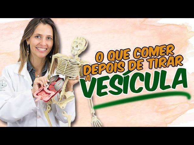 dieta post operacion vesicula laparoscopica
