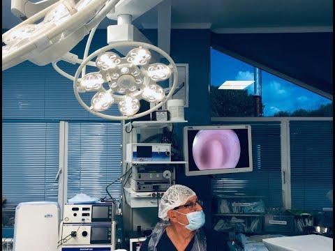 Гистерорезектоскопия полипов эндометрия