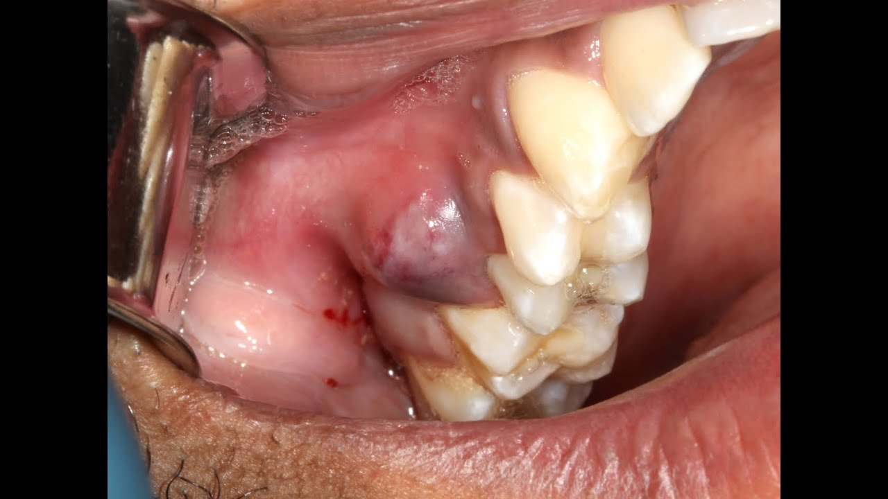 Juicy Pus Explosion From Dental Abscess With Extraction Youtube
