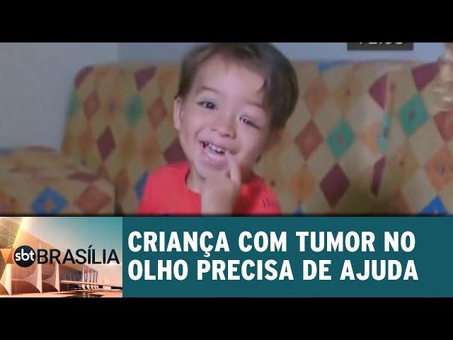 Criança com tumor no olho precisa de ajuda | SBT Brasília 14/02/2019