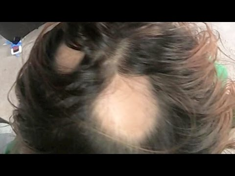 Wen Hair Products Make You BALD?? | What's Trending Now