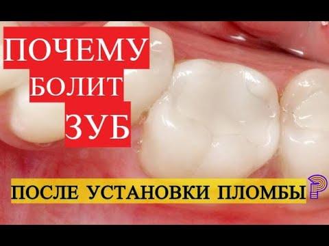 После лечения зуба болит