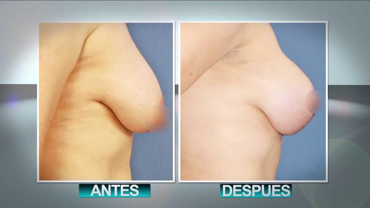 Fotos antes y despus mamoplastia, aumento pecho, mastopexia
