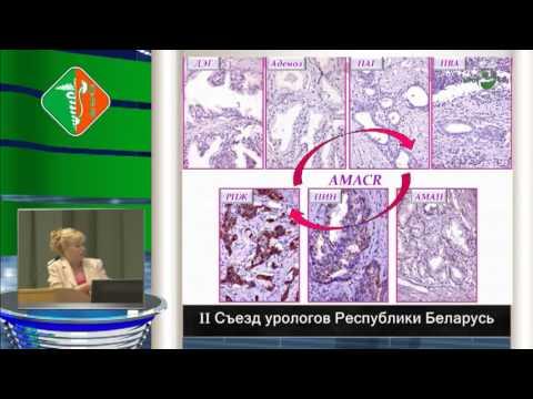Анальная интраэпителиальная неоплазия