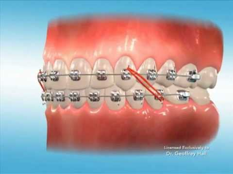 Advanced Orthodontics Elastics Youtube