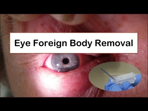 Eye Foreign Body Removal