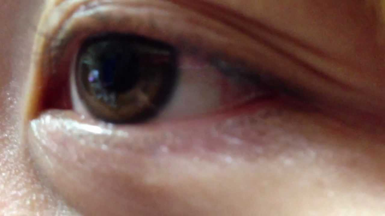 目の下 が ぴくぴく