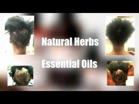 Stop Hair Loss In African American Women