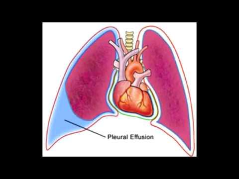 Pleural Effusions – Transudate, Exudate & Lymphatic