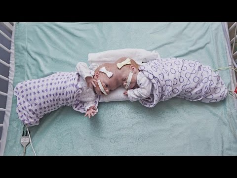 10-Month-Old Twins Joined at the Head Successfully Separated