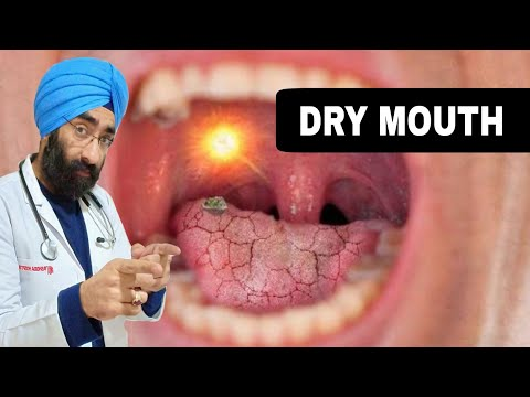DRY MOUTH -Explained in English |Dr.Education
