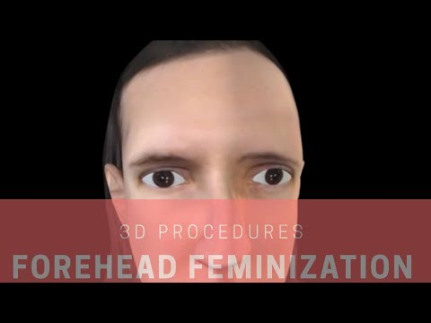 Forehead Feminization in 3-D FFS SURGERY | FACIALTEAM