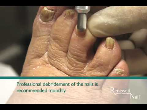 Renewed Nail Instructional Video Youtube