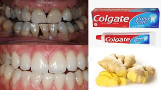 Magical Teeth Whitening Remedy Yellow teeth to white teeth in just 4 minutes at home