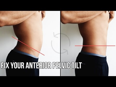 How To Fix Anterior Pelvic Tilt (APT)