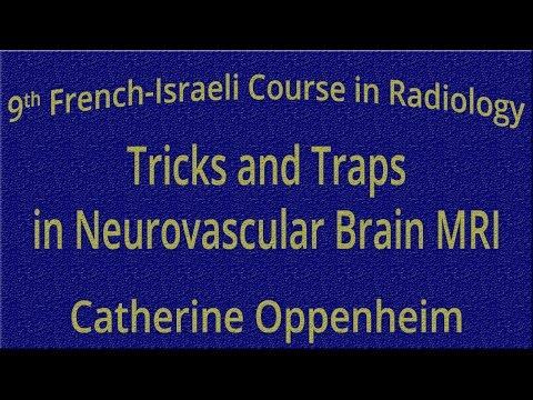 Tricks and Traps in Neurovascular Brain MRI - Catherine Oppenheim