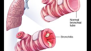 Bronchitis (PEV)