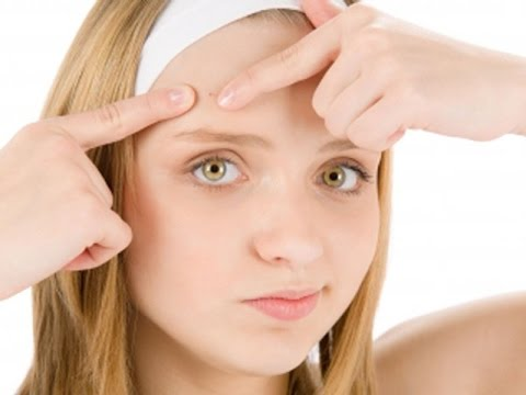 How to Get Rid of Forehead Acne: Acne Scars Treatment, Removal, Medication, Cure, Home Remedies