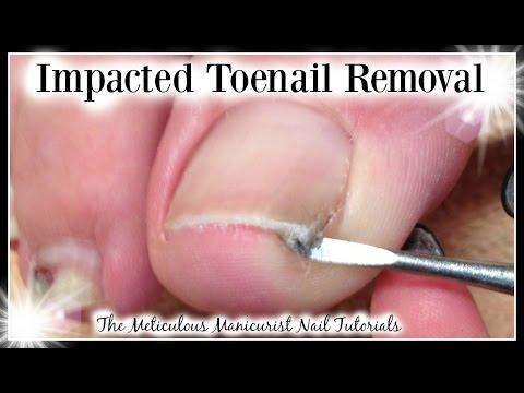 Impacted vs  Ingrown Big Toenail Removed for Pain Relief ♥ Pedicure ♥