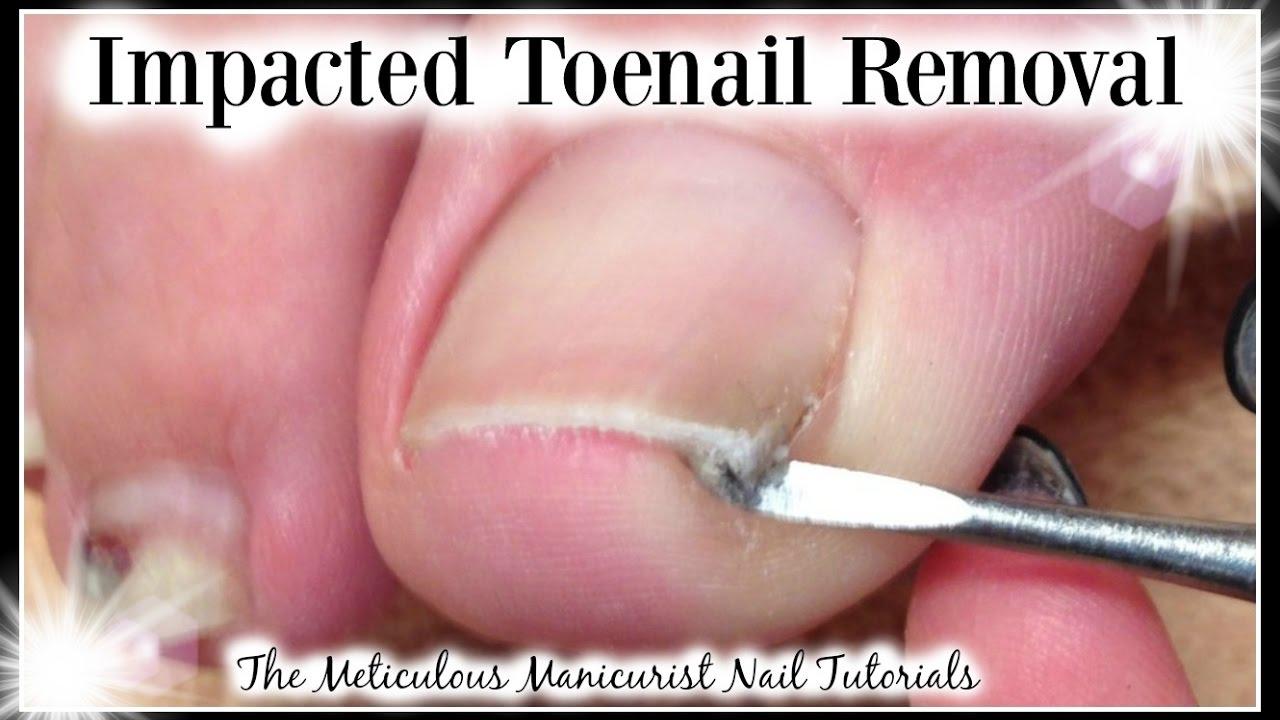 Impacted vs Ingrown Big Toenail Removed for Pain Relief ♥ Pedicure ...