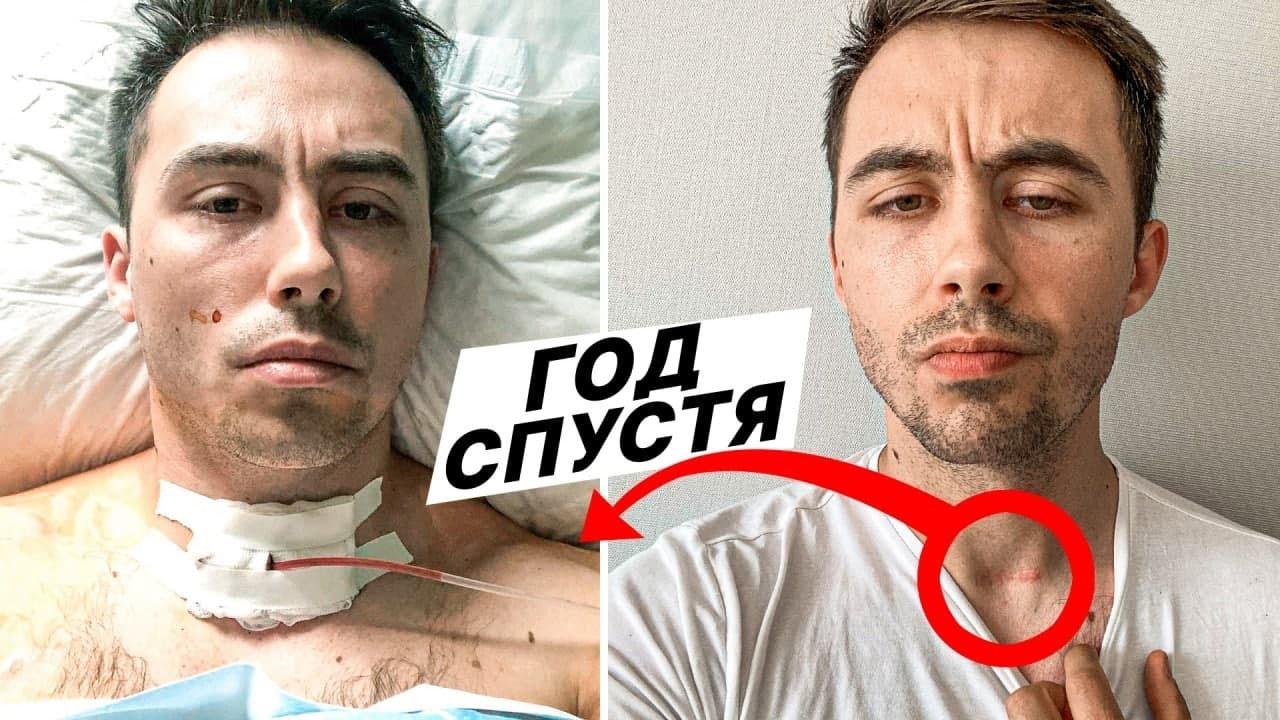 """Год после диагноза """"рак"""". ЧТО я изменил в своей жизни"""