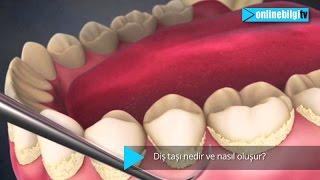 Diş taşı nedir? Nasıl oluşur?