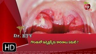 Dr. ETV | Causes for Throat infection | 26th January 2017 | డాక్టర్ ఈటివీ