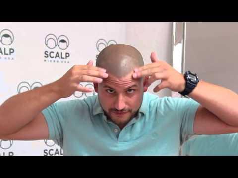 New York Scalp Micropigmentation- Eric's Testimonial- Scalp Micro USA