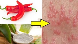 Top 5 Home Remedies for Scabies||How To Get Rid of Scabies