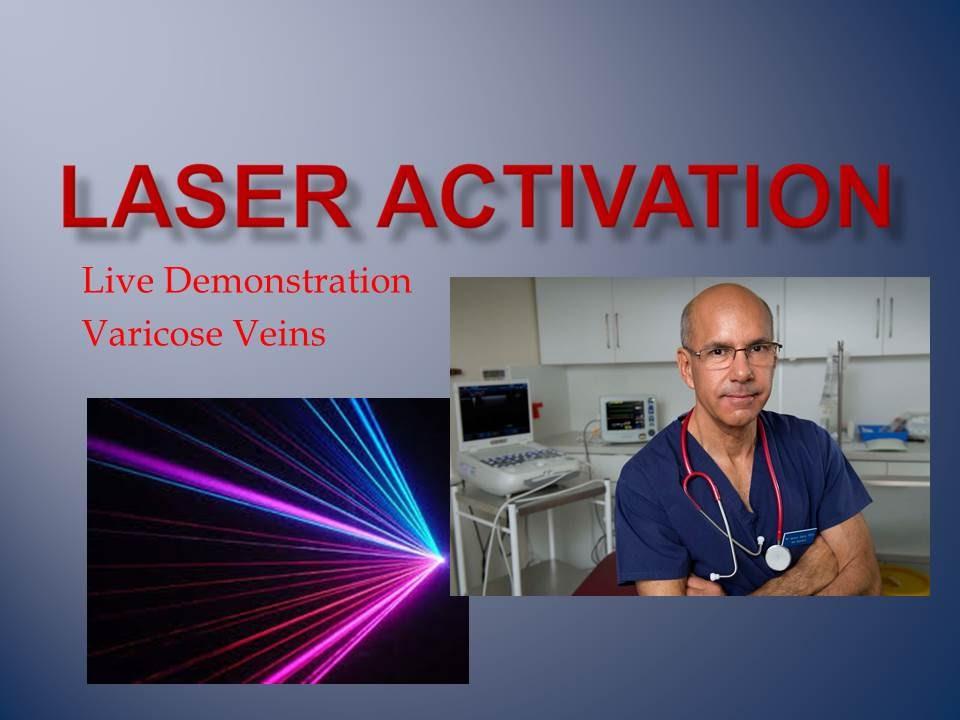 live program mare varicose prevenirea capsulei varicoase
