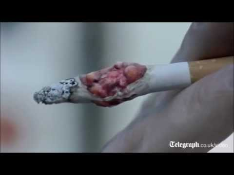 Graphic anti-smoking advert released in UK