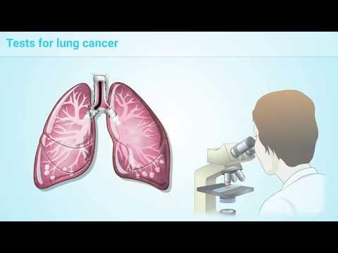 Poliklinika Harni - Rak pluća u žena prestiže po smrtnosti rak dojke