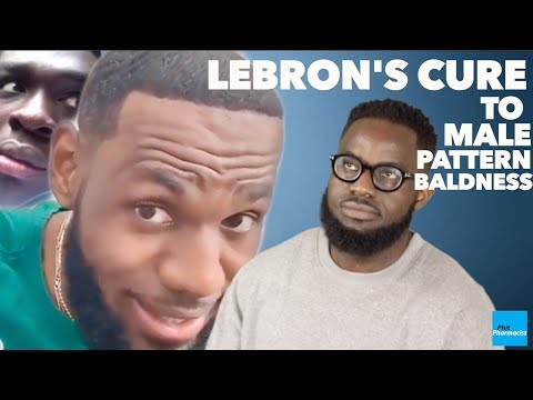 lebron's-cure-to-male-pattern-baldness:-how-to-treat