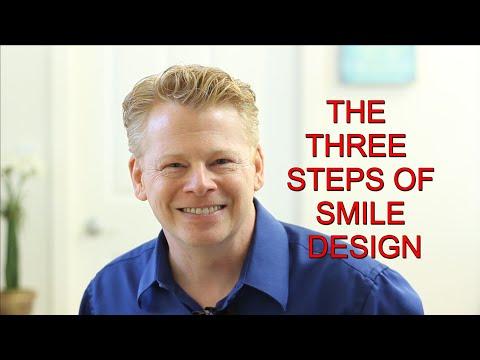 Smile Makeover Stockton CA | Porcelain Veneers | Crowns