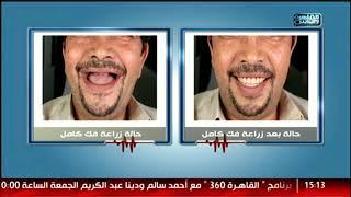 الدكتور | كل ما تريد معرفته عن زراعة الأسنان مع دكتور شادى على حسين