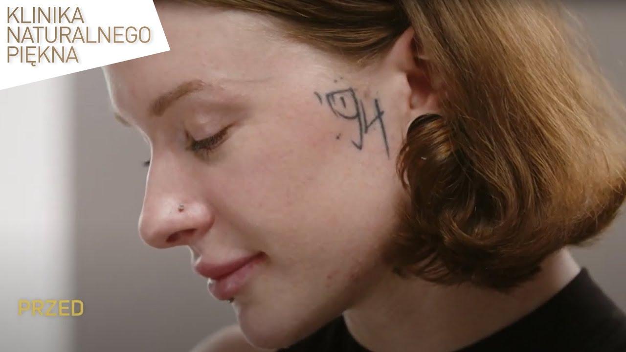 Tatuaż na twarzy okazał się ogromnym błędem. Dzięki temu zabiegowi odzyskała pewność siebie...