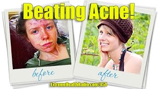 Tracy Raftl - Healing Acne Without Drugs, Medications Or Antibiotics!