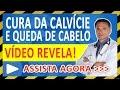 CURA da QUEDA de CABELO - Medico REVELA como acabar com Calvície e Nascer Cabelo de Forma Natural