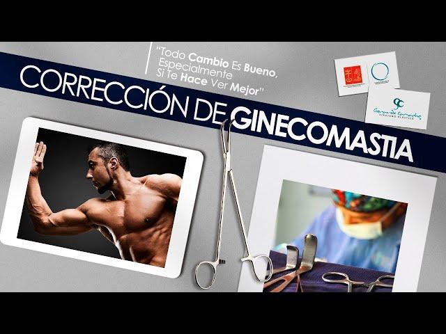 Antes y después Casos  de Corrección Ginecomastia  Bogotá - Colombia