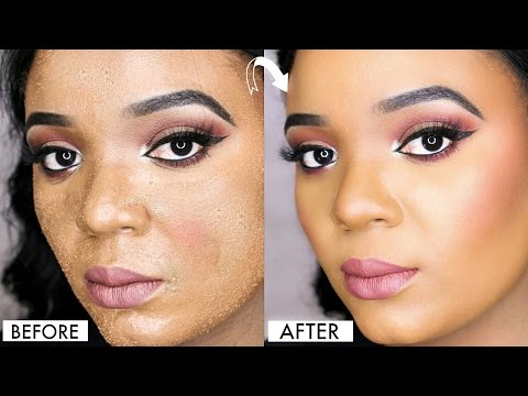 HOW TO AVOID CAKEY FOUNDATION & SMUDGY CONCEALER ON ACNE PRONE SKIN | OMABELLETV