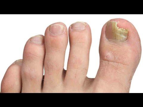 Si se adhiere la uña después del hongo de las uñas