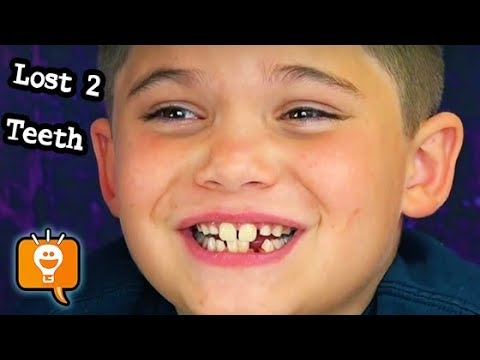 HobbyPig Lost TWO Teeth! Door Slam Method + Pulled His Own Tooth HobbyKidsVids