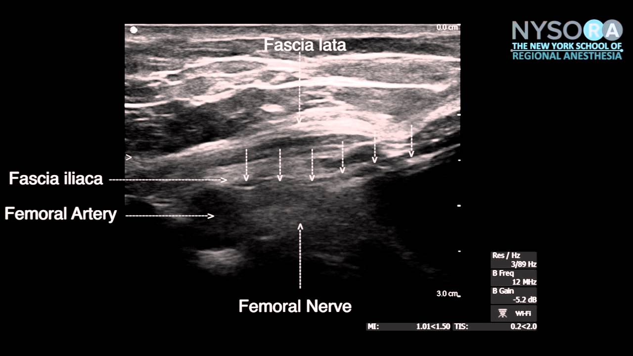 ultrasound guided femoral nerve block in plane technique - youtube, Muscles