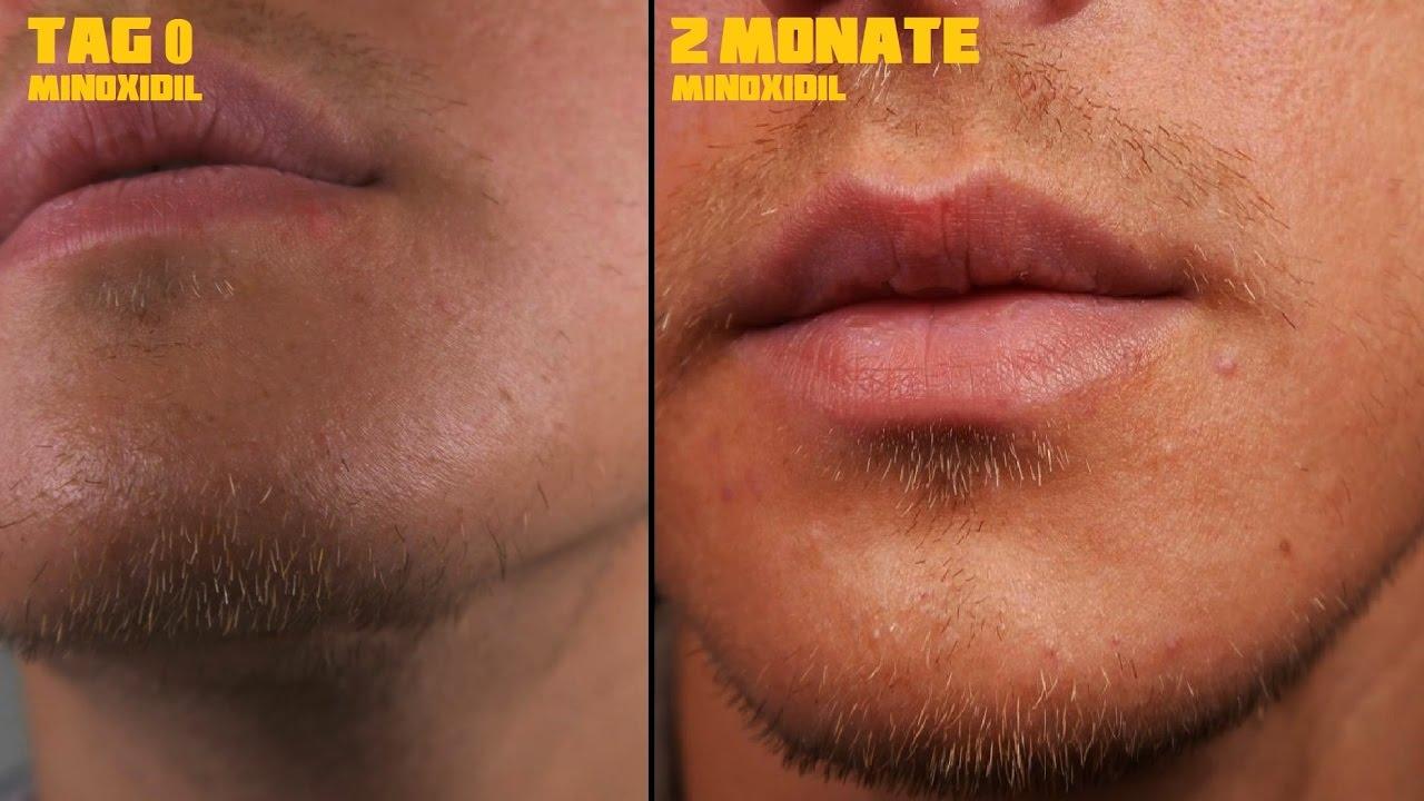 Minoxidil Nebenwirkungen Bart