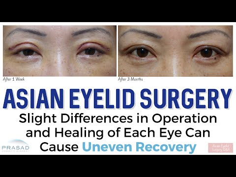 Asian Eyelid Surgery - Why Location of Incision is Not the Same as Final Crease Position